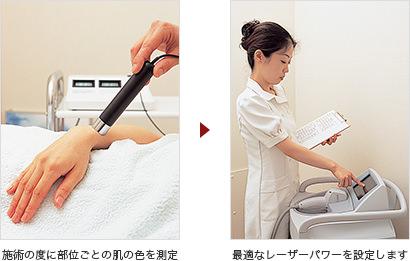 施術の度に部位ごとの肌の色を測定→最適なレーザーパワーを設定します
