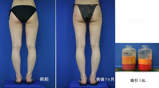 脂肪吸引 LS1