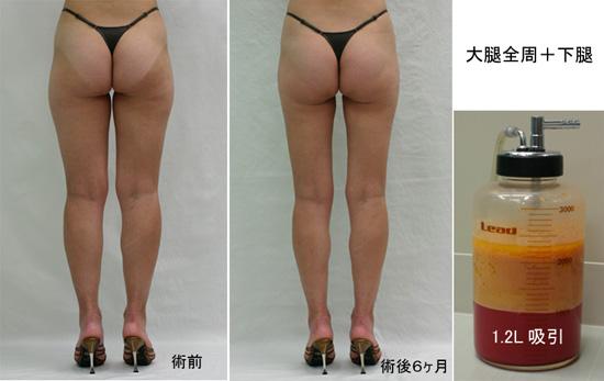 脂肪吸引 LS2