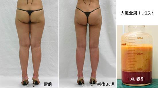 脂肪吸引 LS3