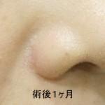 鼻翼縮小術 1Ma
