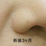 鼻翼縮小術 3Ma