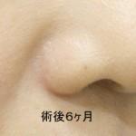鼻翼縮小術  6Ma