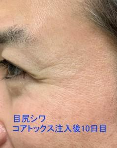 コアトックス 注入 目尻シワ取り10日目